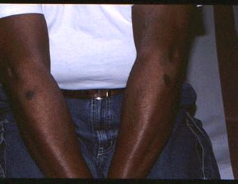 Drug rash on the legs!-03-dec.-07.png