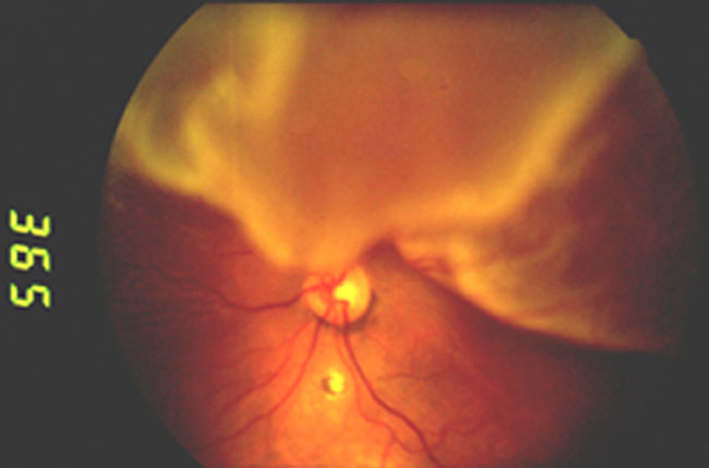 Four Funduscopy Pictures; What's the Diagnosis?-1.jpg