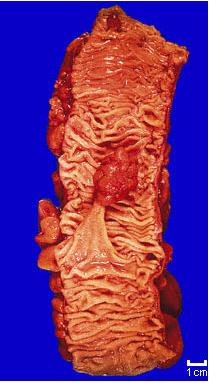 Colon Pathology-11111.jpg