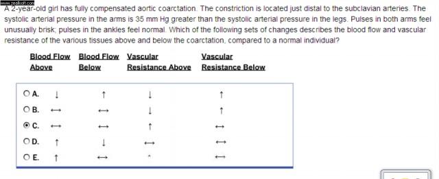 Coarctation of the Aorta-145.jpg