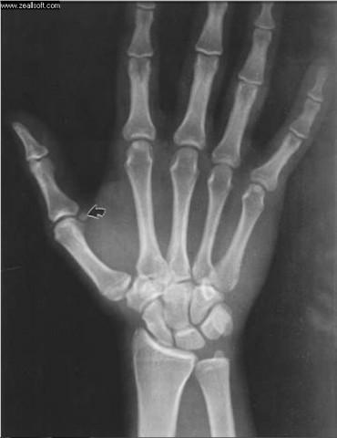 sesamoid bones-151.jpg