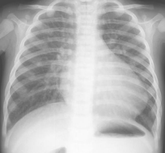 Newborn Congenital Heart Disease Dx from Chest X ray!-2g1a.jpg