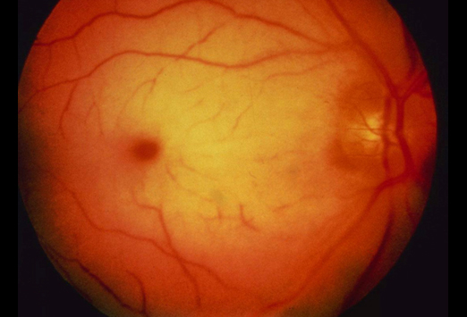 Four Funduscopy Pictures; What's the Diagnosis?-3.jpg