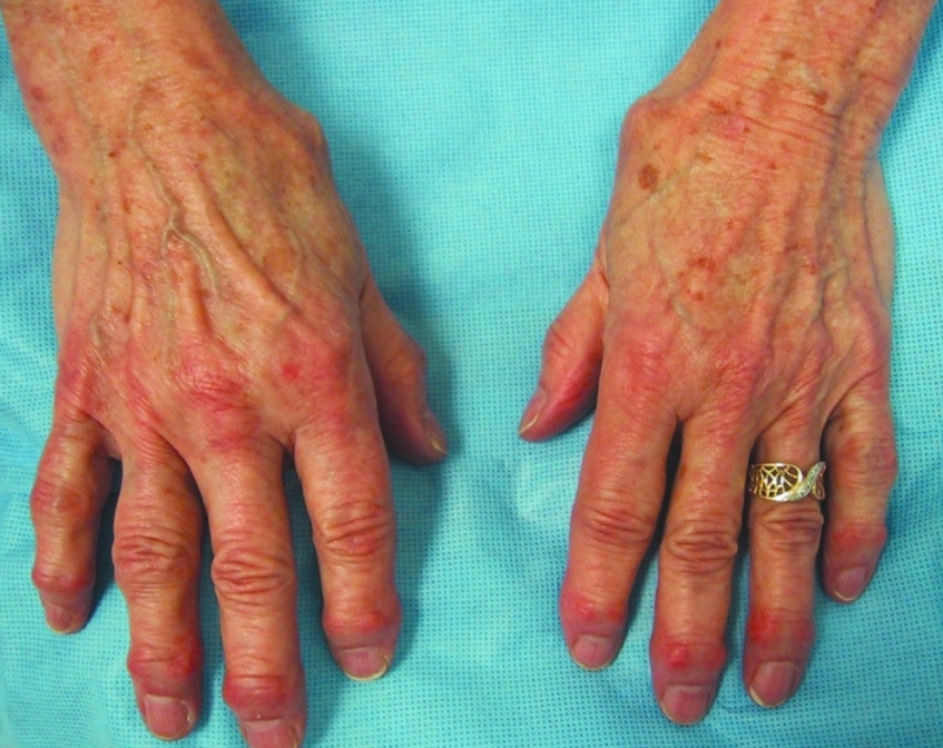 image q...women with hand stiffness !!-4-usmle-forums.jpg