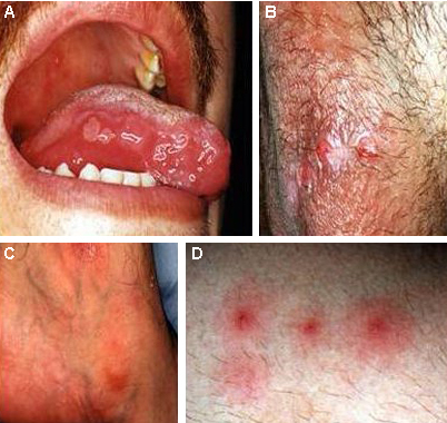 Dermatology Pictures for the CK Exam-776-13_default.jpg