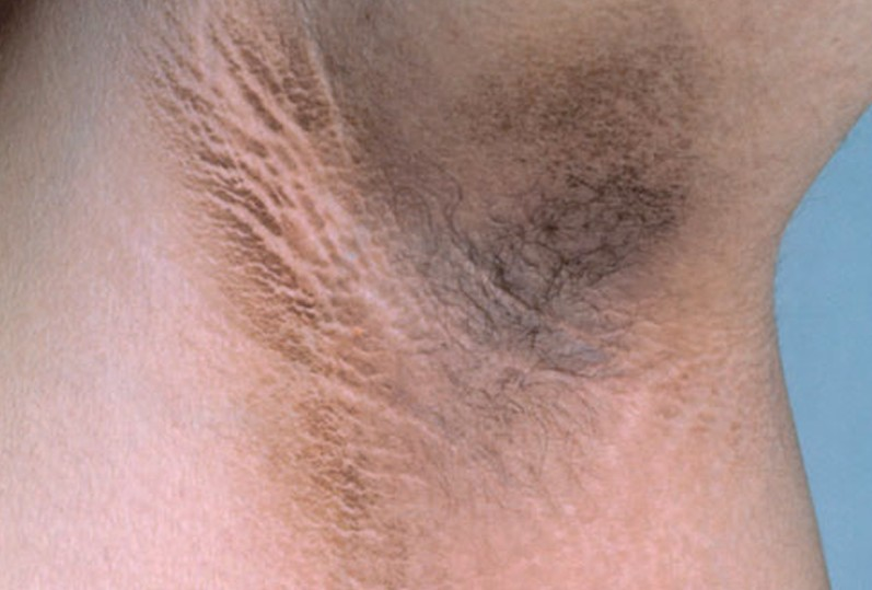 Dermatology Pictures for the CK Exam-acanthosis-nigricans-pictures-2.jpg