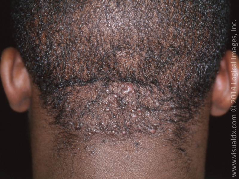 Dermatology Pictures for the CK Exam-acne-keloidalis-nuchae.jpg