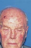 Dermatology Pictures for the CK Exam-actinic-keratosis.jpg
