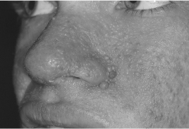 High Yield Images for Step 2 CK-adenoma-sebaceum.jpg