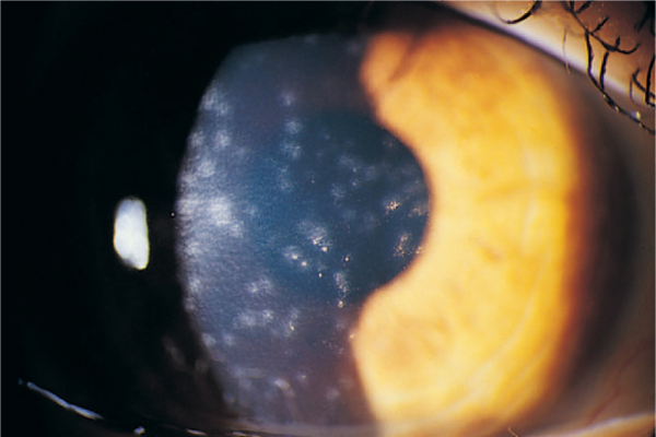 Eye infection from father to his son!-adenovirus_keratoconjunctivitis.jpeg