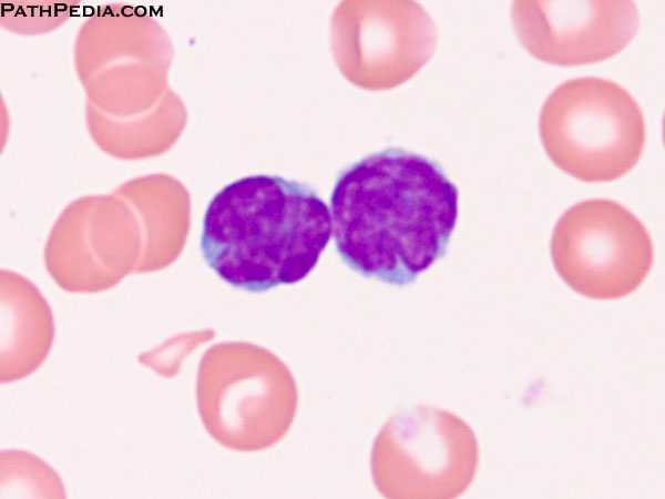 High Yield Blood Films for your Step 2 CK!-adult-t-cell-leukemia-htlv1-3-bl095-3-.jpeg