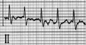 Atrial fibrillation or Atrial flutter?-afib-aflutter.jpg