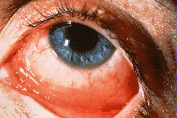 Ophthalmological high yield images-allergic_conjunctivitis.jpg