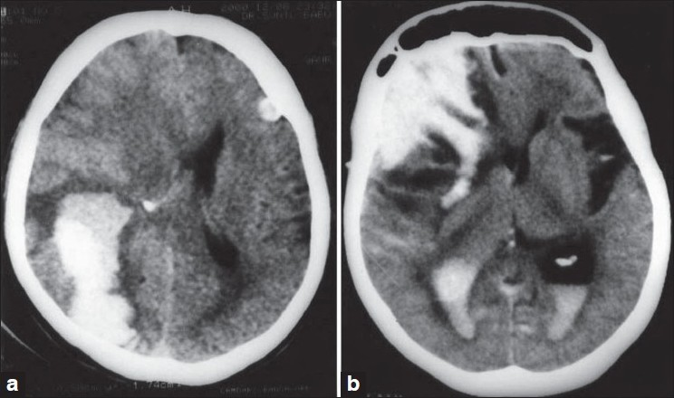 which disease caused this neurological problem?-amyloid-angiopathy.jpg