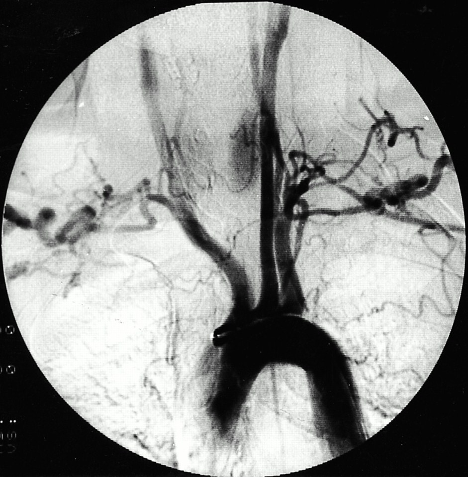 Rheumatoid Arthritis and Arterial Obstruction!-angiogram.jpg