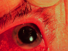 Ophthalmological high yield images-anterior_uveitis_ibd.jpg