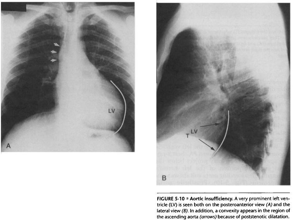 Essentials of Radiology - Cardiovascular System-ar.jpg