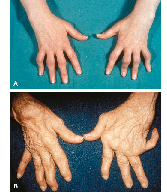 The hand in different diseases-ar1.png