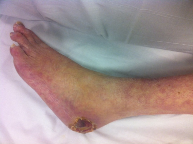 Dermatology Pictures for the CK Exam-arterial-heel-ulcer.jpg
