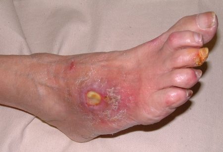 Dermatology Pictures for the CK Exam-arterial_ulcer2.jpg