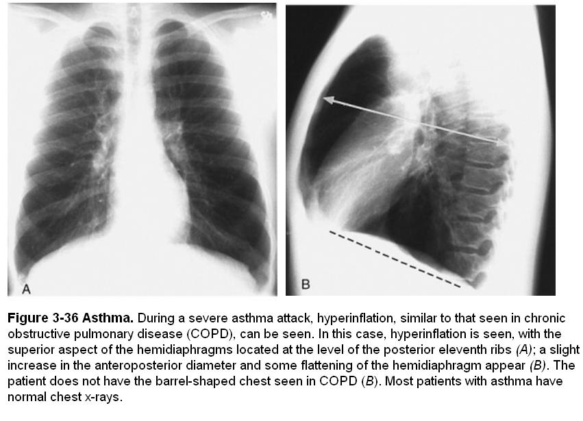 Asthma in Pictures-asthma1.jpg