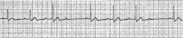 Heart Block EKG-atb1318f1.jpg