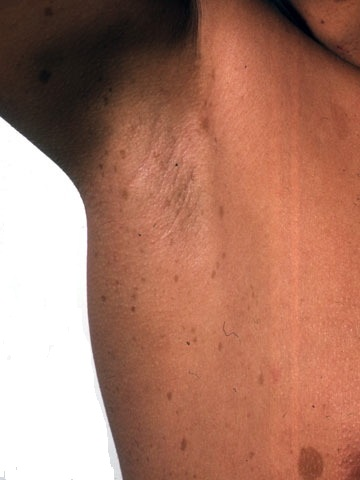 High Yield Images for Step 2 CK-axillary-freckling.jpg