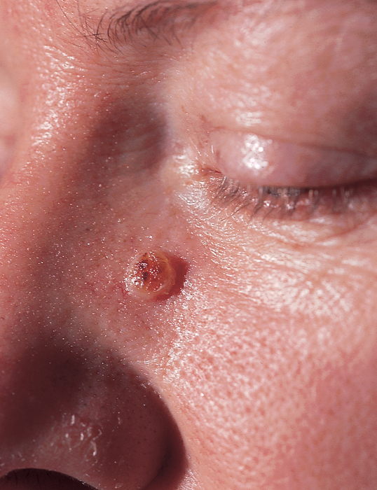 Dermatology Pictures for the CK Exam-basal-cell-carcinoma.jpg