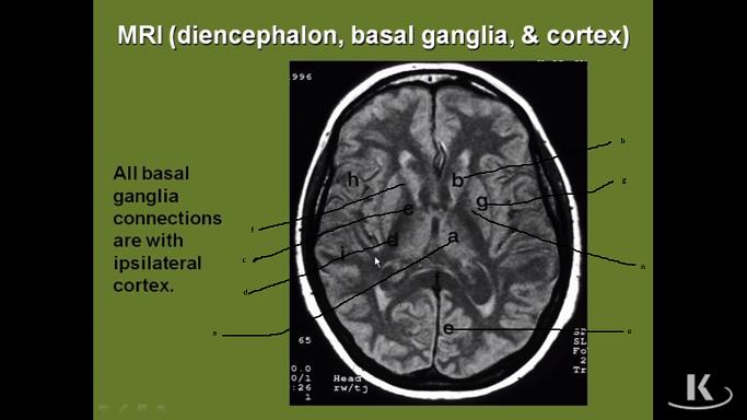Label this Brain MRI!-basal-ganglia.png