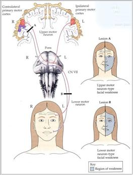 Neuroanatomy Images for your Step 1!-bellpalsy.jpg
