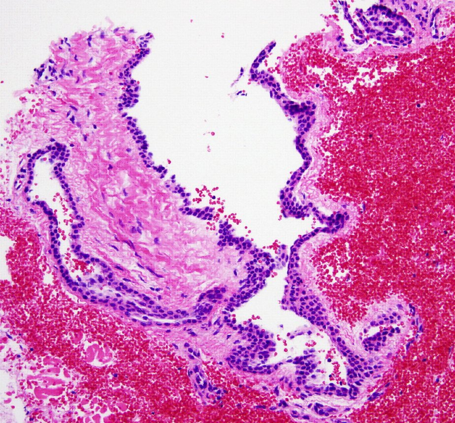 What's your diagnosis of this skin condition?-biopsy.jpg