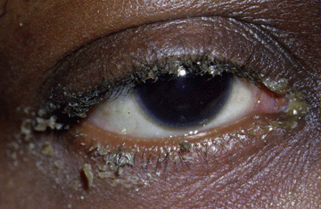 Ophthalmological high yield images-blepharitis.jpg