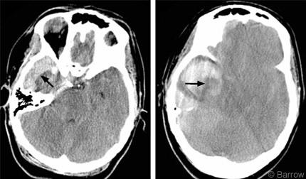 Intracranial hemorrhages-bqjpg235.jpg