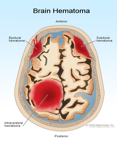 Where is the lesion CT Scan question?-brain-hematoma.jpg