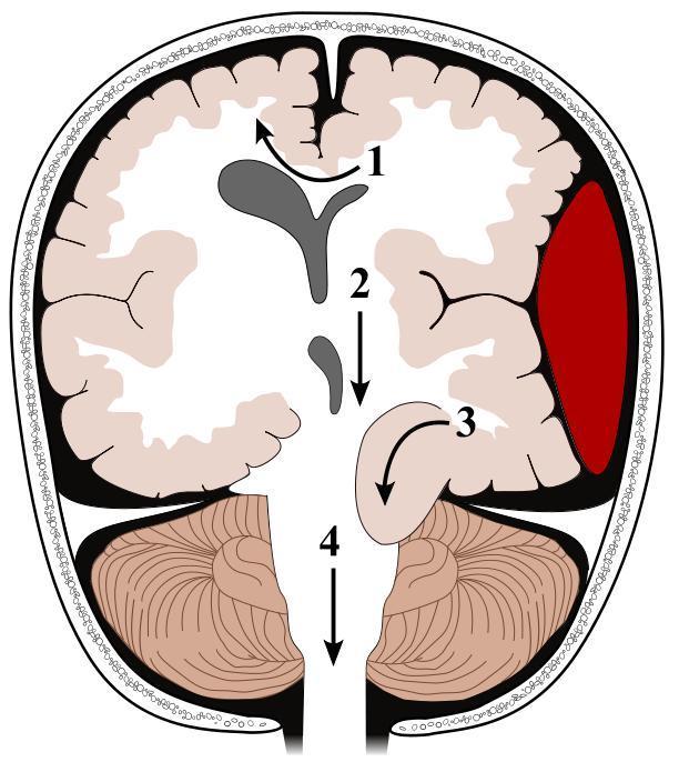 Brain Herniations-brain-herniation2.jpg