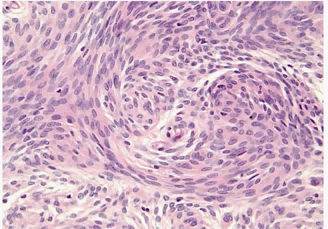 Immunohistochemistry of this Brain Tumor!-brain-tumor.png