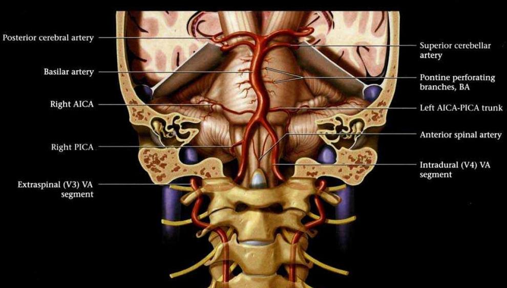 56 y/o man with vertigo and dysphagia-brainstem_art.jpg