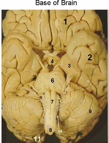 High Yield Question #3-brainstem_clip_image002_0000.jpg