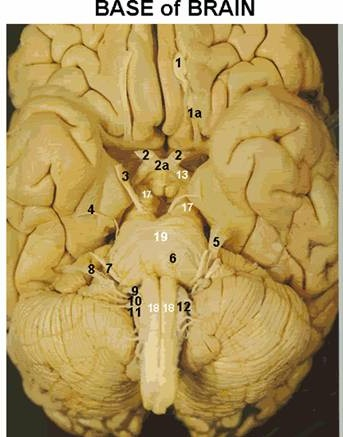 High Yield Question #3-brainstem_clip_image002_001.jpg