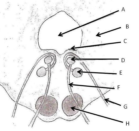 Brain Stem Lesion-brainstemlesion.jpg