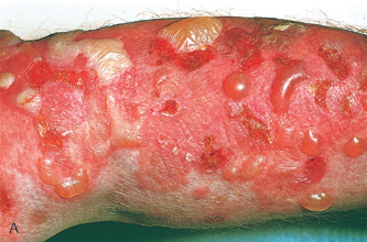 Dermatology Pictures for the CK Exam-bullous-pemphi.jpg