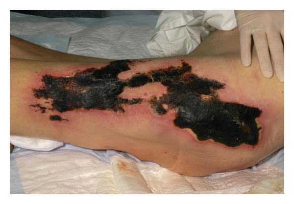 Dermatology Pictures for the CK Exam-calcific.jpg