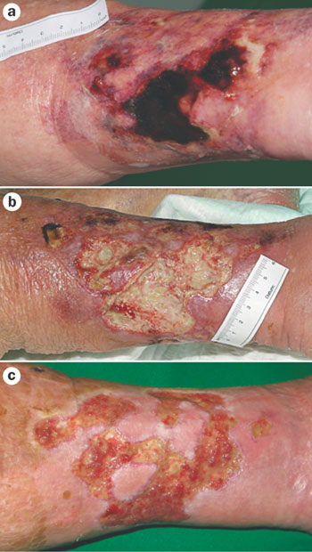 Dermatology Pictures for the CK Exam-calcific-s.jpg