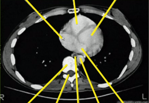 Chest CT and the orientation of CT scans!-capture.png