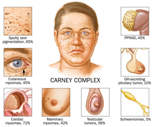 Dermatology Pictures for the CK Exam-carneycomplex.jpg