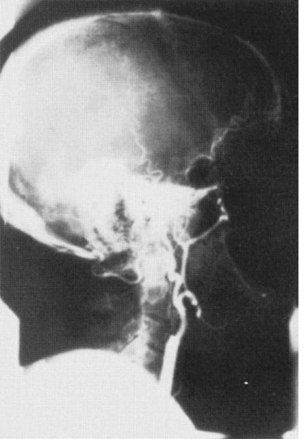 Cerebral Arteriogram Question-cerebral-arteriogram-1.jpg