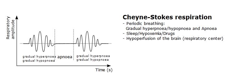 Breathing Patterns-cheyne-stoke-respiration.jpg