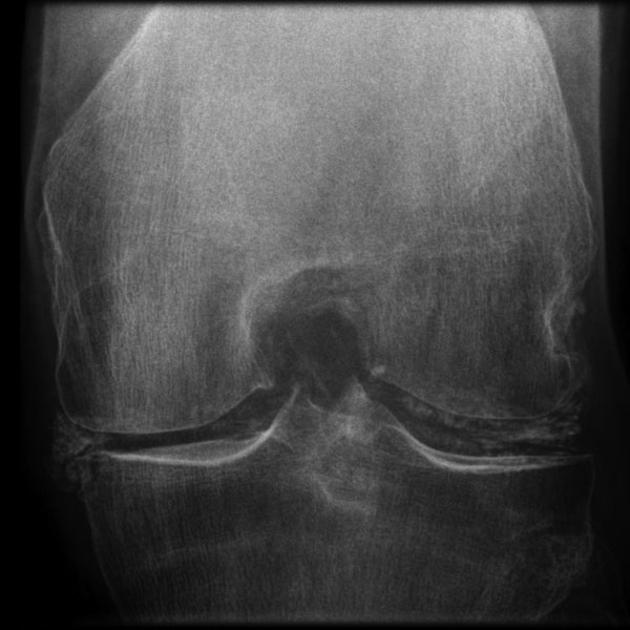 High Yield Rheumatology X Rays for your CK-chondrocalcinosi.jpg