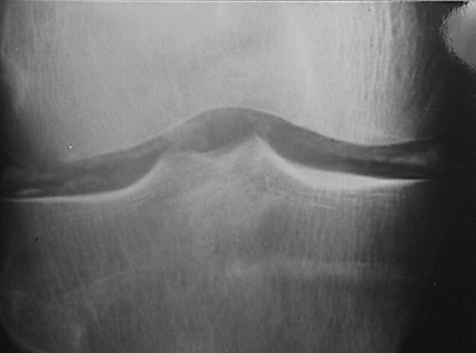 High Yield Rheumatology X Rays for your CK-chondrocalcinosis.jpg