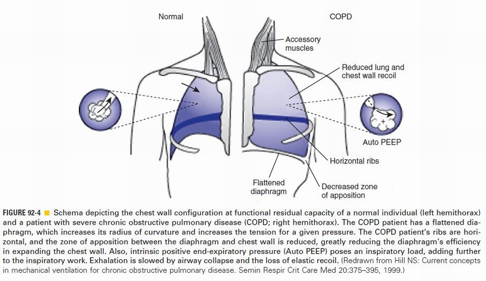 COPD in Pictures-copd2.jpg